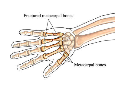 Fractured Metacarpal Bones