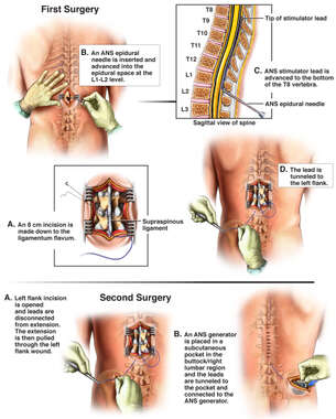Surgical Placement of Spinal Cord Stimulator