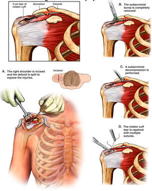 Traumatic Right Shoulder Injury of the Acromion