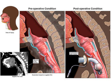 Tracheal Stenosis with Tracheostomy Tube Placement