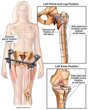 Surgical Fixation of Multiple Orthopedic Injuries
