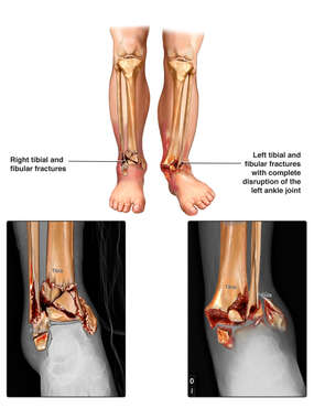 Traumatic Injuries to the Bilateral Lower Extremities