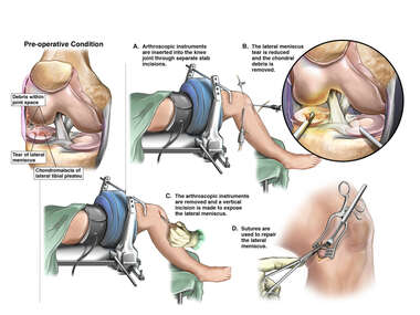 Right Knee Injuries with Arthroscopic and Open Repairs