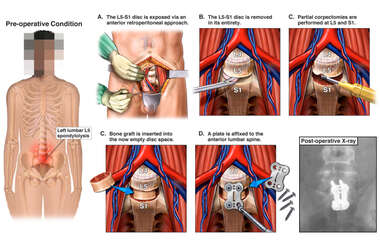 Anterior Lumbar Discectomy and Fusion Procedure