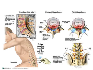 Lumbar Spine Injury with Attempts at Pain Management