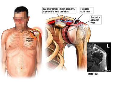 Traumatic Left Shoulder Injuries from Accident