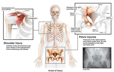 Skeletal Injury Figure with Right Shoulder and Complex Pelvic Fractures