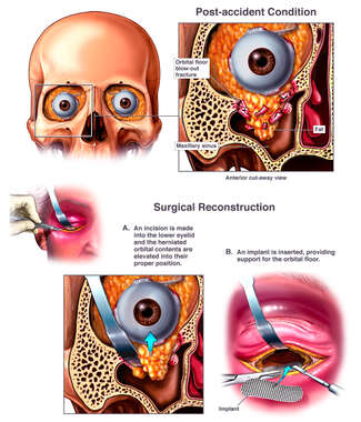 Post-accident Right Eye Orbital Fracture with Surgical Reconstruction