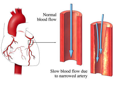 Stenosis of an Artery