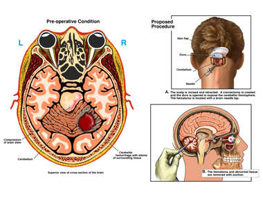 Right Cerebellar Hemorrhage with Proposed Surgical Treatment