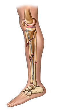 Post-op Tibia Fixation