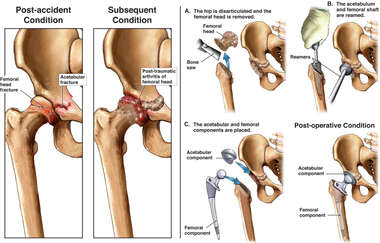 Right Hip Fractures and Subsequent Arthritis with  Total Hip Replacement Procedure