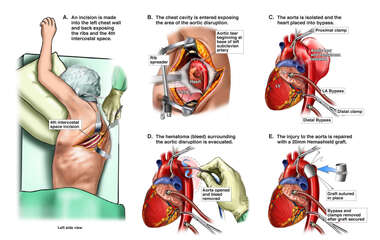 Emergency Repair of Traumatic Aorta Disruption