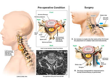Cervical Spine Injuries with Surgical Decompression