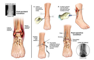 Surgical Fixation of Right Bimalleolar Ankle Fractures