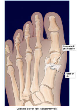 Heterotopic Bone Formation Following Surgical Fixation