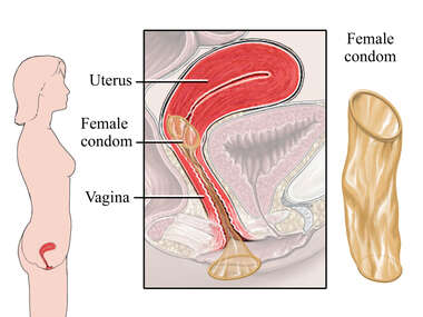 Birth Control - Female Condom