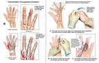 Right Hand Injuries with Surgery