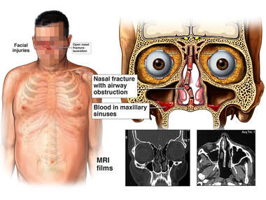Traumatic Nasal Injuries from Accident