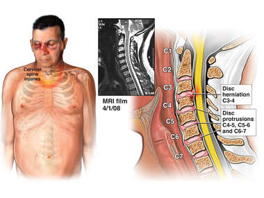 Traumatic Neck Injuries from Accident