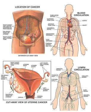 Progression of Uterine Cancer