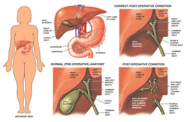 Correct vs. Incorrect Cholecystectomy (Gallbladder Removal) Procedure