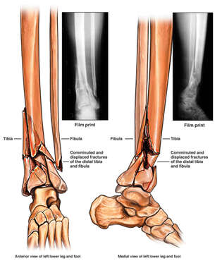 Comminuted and Displaced Fractures of the Distal Tibia and Fibula