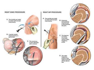 Arthroscopic Repairs of the Knee and Hip