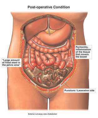 Bowel Puncture / Laceration During Laparoscopic Surgery