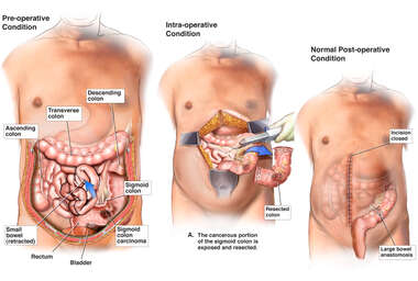 Sigmoid Colon Cancer with Surgical Resection