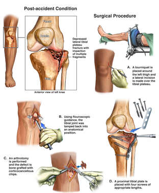 Left Knee Injury with Initial Surgical Fixation