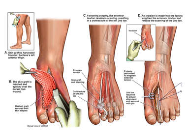 Skin Grafting of Dorsal Foot Wound with Contracture of the Left 2nd Toe