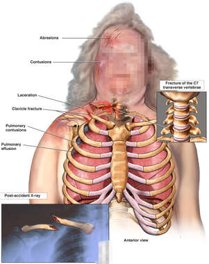 Female Torso with Post-accident Injuries to the Head, Thorax, Collar Bone and Spine