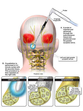 Cryoablation of Greater Occipital Nerves