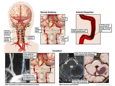 Arterial Dissection and Stroke