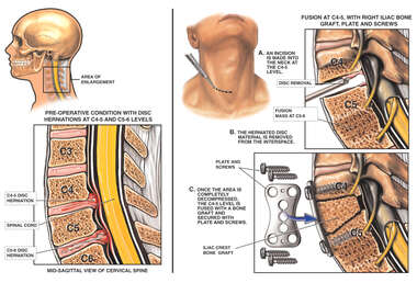Cervical Disc Protrusions at C4-5 and C5-6 with Spinal Fusion Surgery