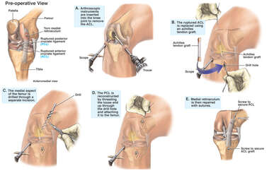 Anterior and Posterior Cruciate Ligament Knee Injury With Surgical Reconstruction