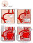 Blood Flow and Vasospasm