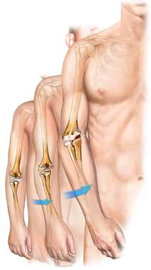 Left Arm Medial Growth Plate Deformity