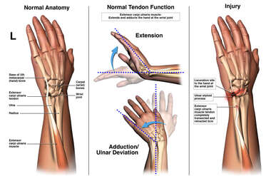 Injury to the Extensor Carpi Ulnaris