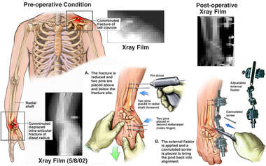 Post-accident Fractures with Surgical Fixation of the Right Wrist