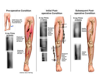 Femur and Tibial Fracture Fixation and Subsequent Bone Deformity