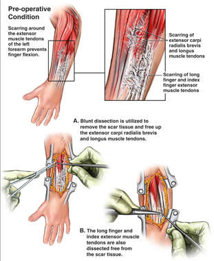 Scar Contractures with Surgical Repairs