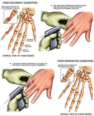 Post-accident Finger Fracture with Surgical Fixation