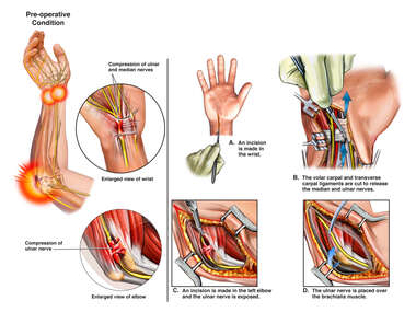 Right Ulnar and Median Nerve Compression with Surgical Decompression
