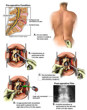 L4-5 Disc Herniation with Surgical Repair