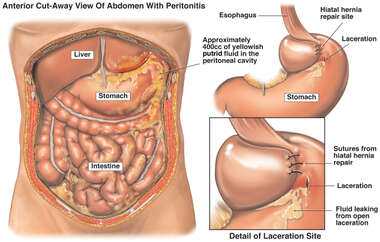 Post-operative Laceration of the Stomach with Fatal Acute Peritonitis
