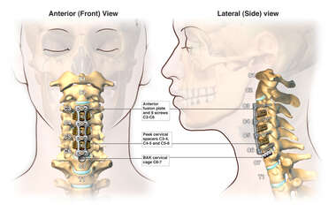 Triple Level Anterior Cervical Discectomy and Fusion