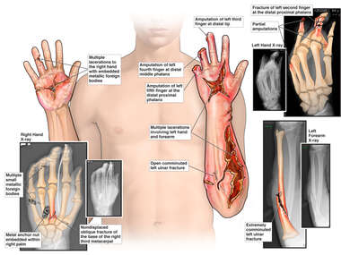 Bilateral Hand Injuries