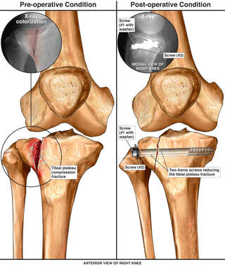 Comminuted Right Knee Fracture with Surgical Fixation